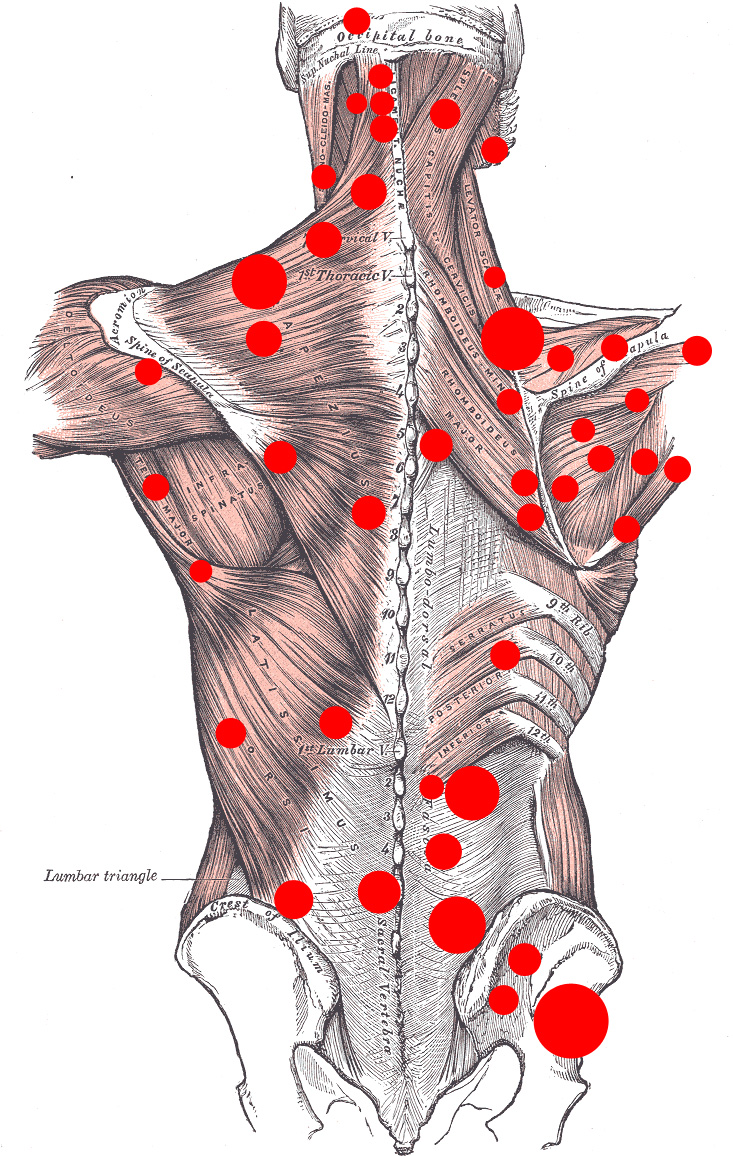Myofascial trigger points on the back
