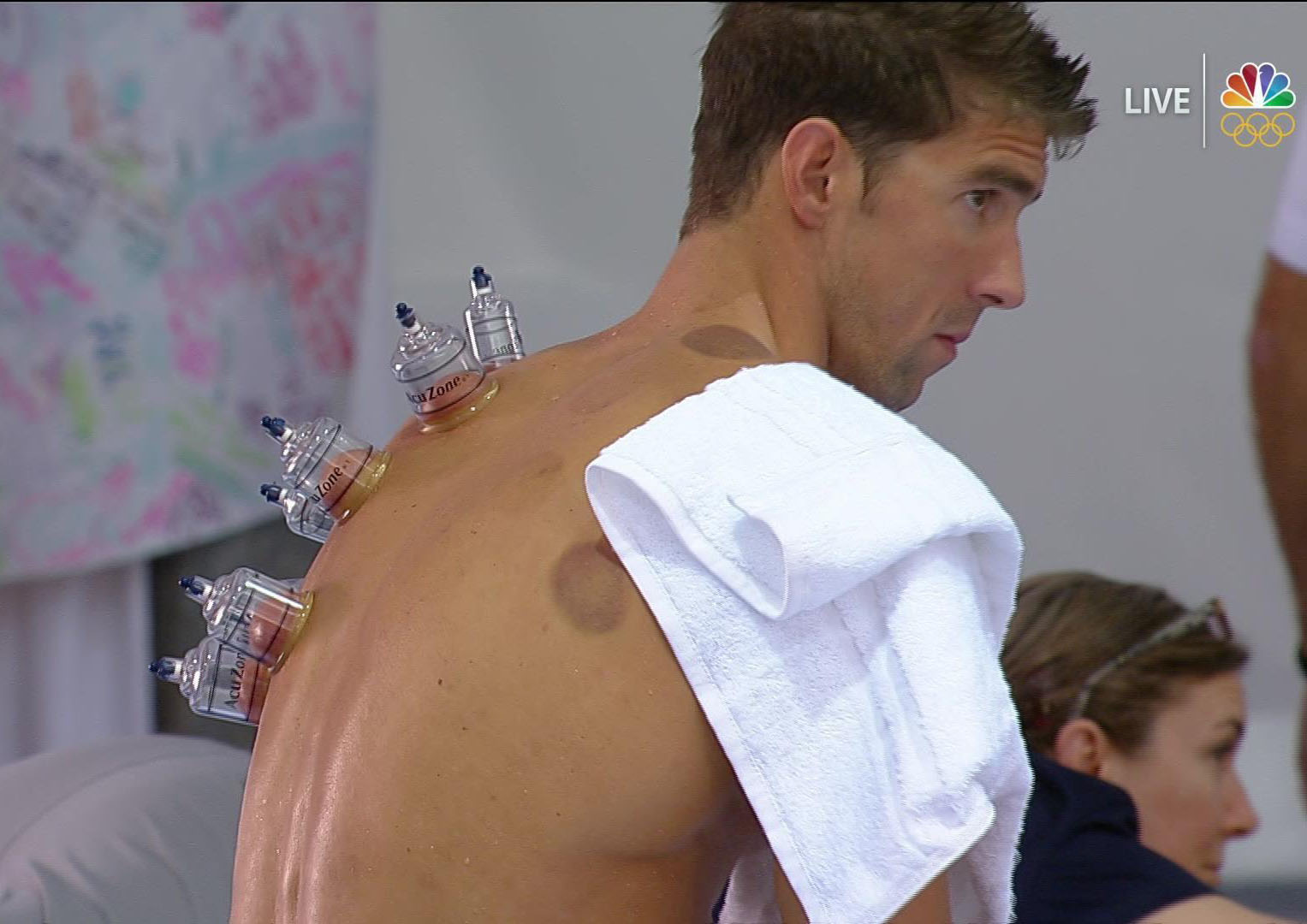 Michael Phelps cupped at 2016 Olympics